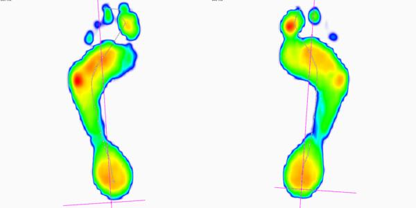 Digitale voetanalyse en maatname